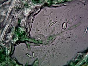 Chlorociboria_aeruginascens_PSA_20170125-01.jpg